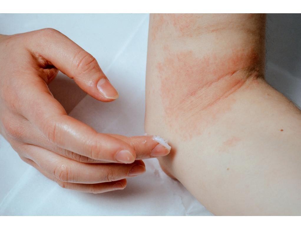 Neurodermitis: ursache und behandlung